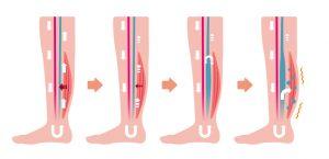 Bein ohne Kompressionsstrumpf Blutstau