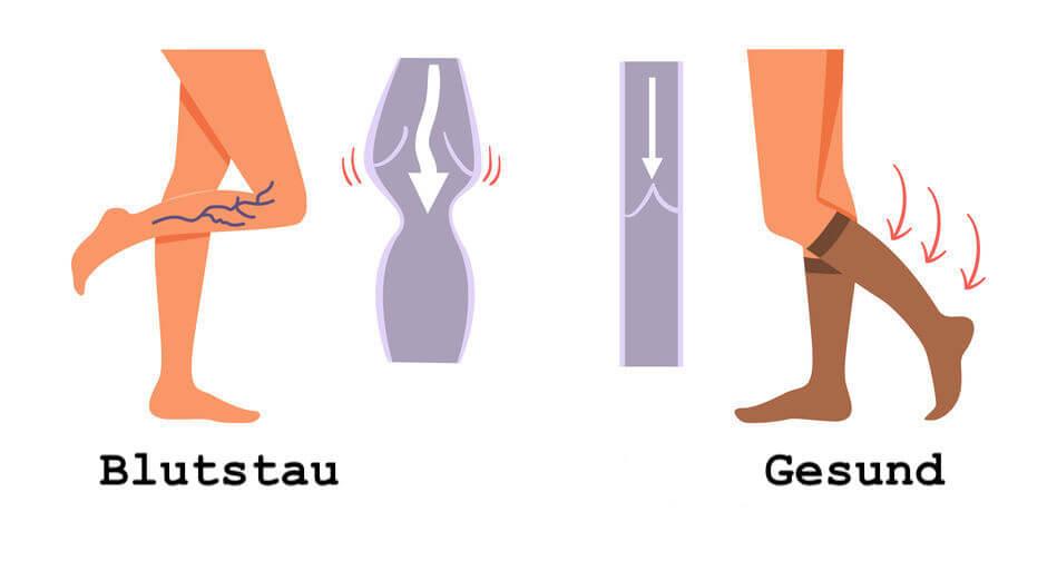 Blutstau ohne Kompressionsstrümpfe und gesundes Bein mit Kompressionsstrümpfen