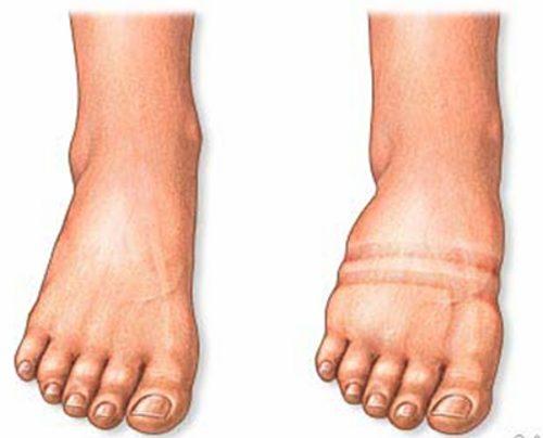 Wasser In Den Beinen Mit Bläschenbildung