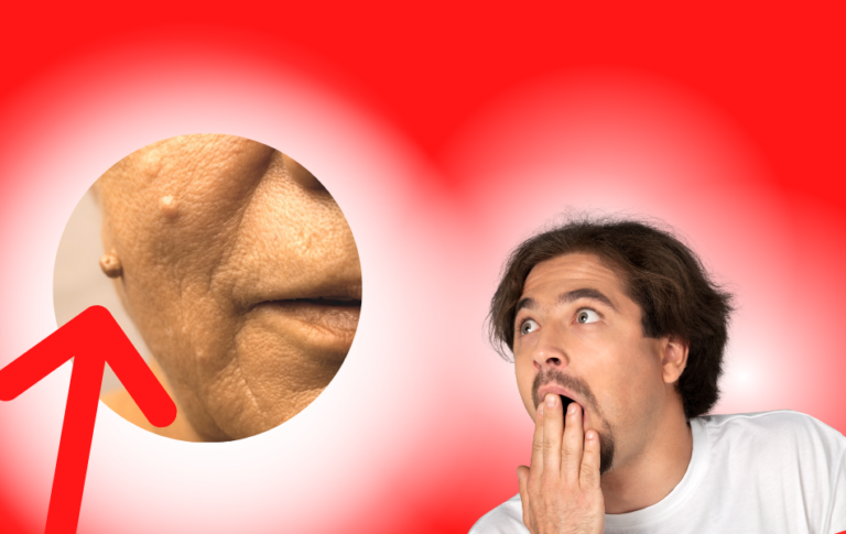 Die wahre Ursache von Hautanhängseln