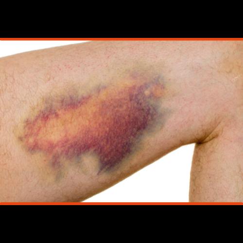 Warum blaue Flecken beim Hula Hoop gefährlich werden können und wie du sie vermeidest 2
